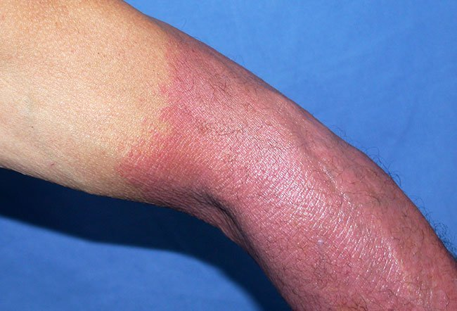 Picture of a phototoxic drug induced photosensitivity