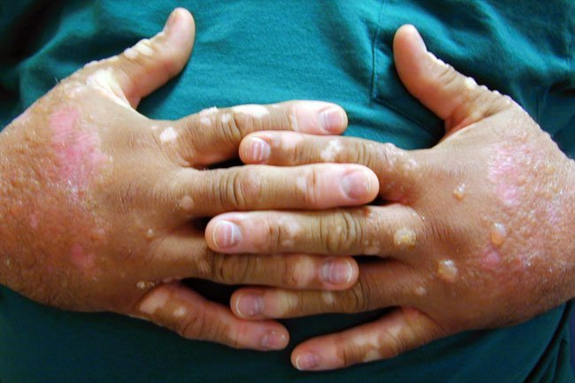 Picture of photodermatitis with blisters
