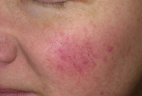 Rosacea Treatment, Causes, Pictures, Symptoms & Medication