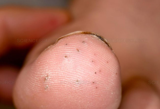 Sea Urhcin Dermatitis Picture Image On Medicinenet Com