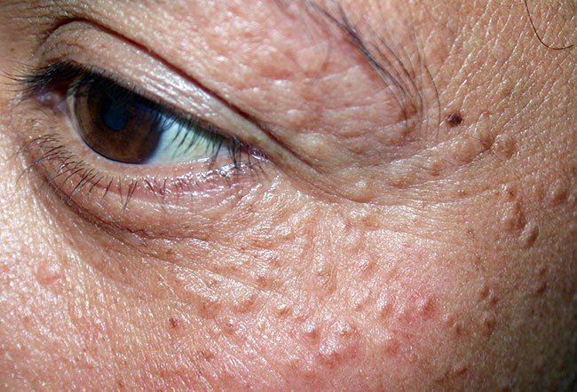 Picture of Syringomas on the Eyelids of a Marfan Syndrome Patient