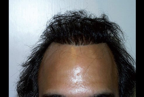 Picture of Unnatural 'Pluggy' Hairline
