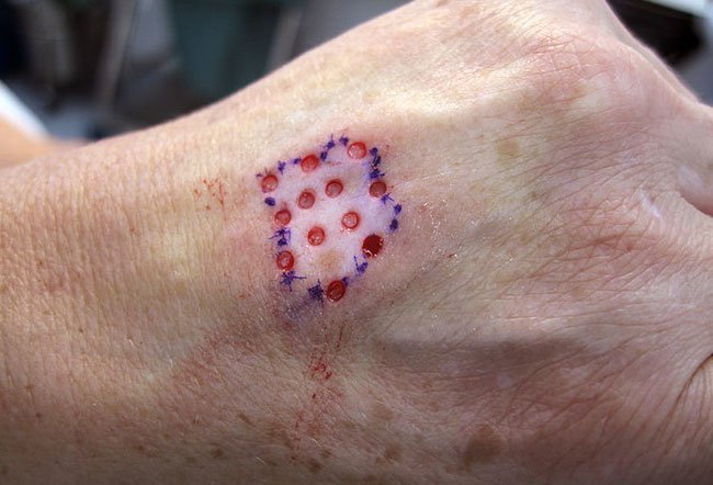 Picture Of Vitiligo Hair On Medicinenet