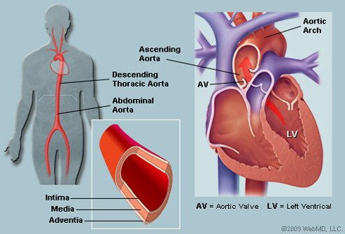 Aortic Dissection Types, Symptoms, Surgery & Treatment