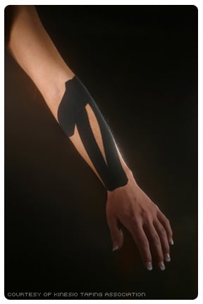 Picture of Kinesio Tape