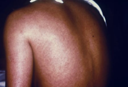 Picture: A woman with Marburg virus infection has a rash on her back