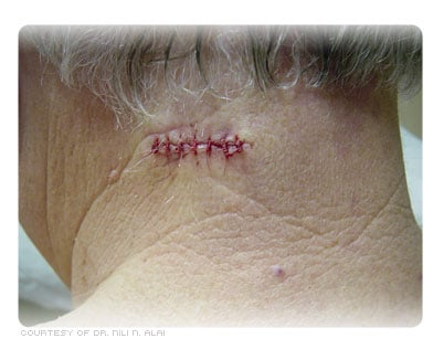 Post-op closure of the wound with sutures