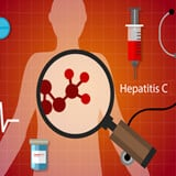 Hepatitis C (Hep C) Symptoms and Treatment