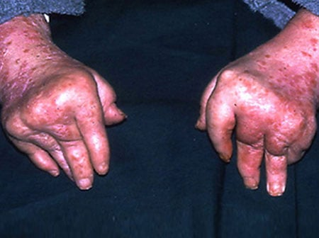 Psoriatic arthritis can cause swollen, red, and painfully inflamed joints.