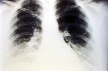 X-ray of pulmonary effusion