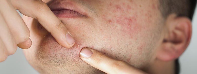 Acne (Pimples, Zits) Quiz: How to Get Rid of Acne & More