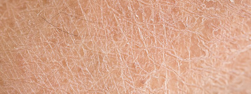 dry skin causes treatment remedies how to get rid of it