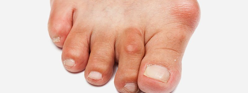 weird facts about feet take the quiz