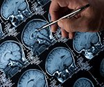 Epilepsy and Seizures Quiz: Test Your Medical IQ