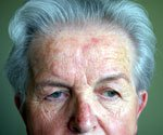 Skin Disease Picture Quiz - Identify These Common Skin Conditions