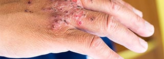 Psoriasis on the hand.