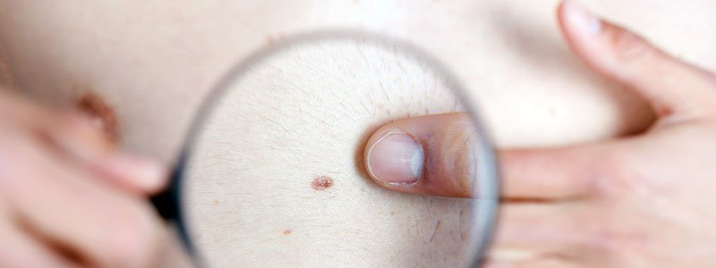 Melanoma Causes, Types, Treatment & Symptoms