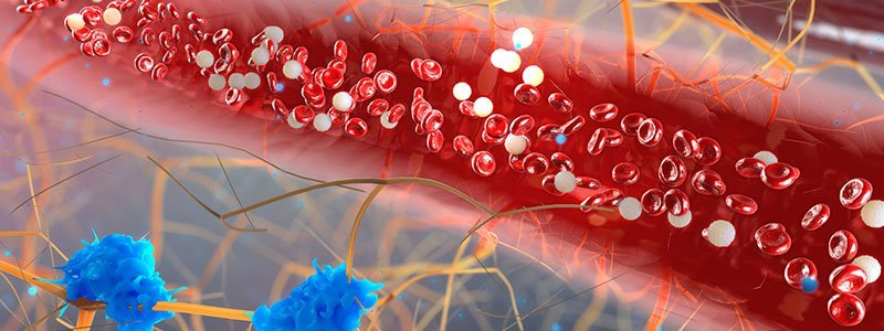 Lower Triglyceride Levels to Normal Range With Diet