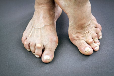 Picture of rheuamtoid arthritis joint deformity in the feet