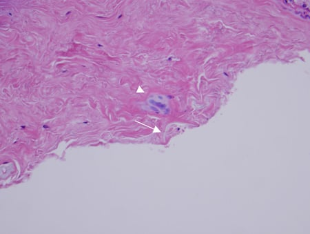 Pathology photo showing multinucleated giant cell granulomatous reaction (triangle point), synovial hyperplasia, fibrosis, and adjacent foreign vegetable matter (arrow with thorn fragments) with H&E stain.