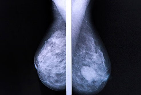 A side-by-side view of mammograms, one with a cancerous tumor and one without.