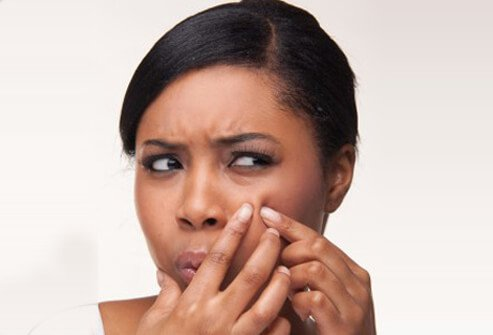 Damaged skin due to acne can result from pimples.