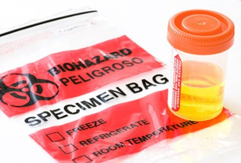 A patient may be asked to provide a urine and stool sample.