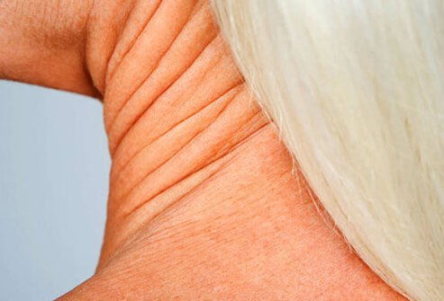Wrinkles on a woman's neck.