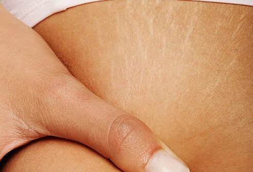 Stretch marks on a woman's leg.