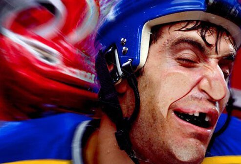 A hockey player missing a tooth.