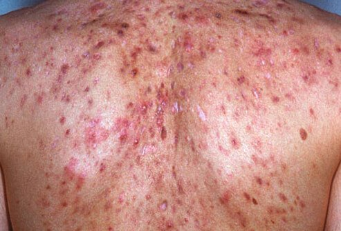 If systemic symptoms like fever or arthritic symptoms develop in patients with acne conglobata, the disease is termed acne fulminans.