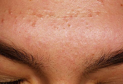 Acne mechanica is caused by a combination of factors.