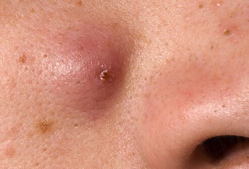 Nodules are forms of papules, but they are bigger and they form more deeply in the skin.