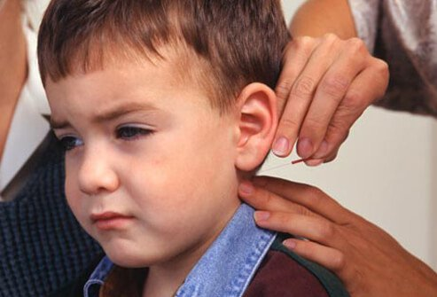 Acupuncture is generally believed to be safe for children.