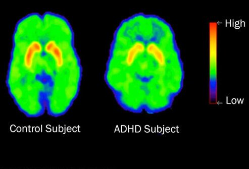 Photo of a brain scan of a child with ADHD.