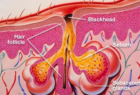 Blackheads are one type of acne lesion.
