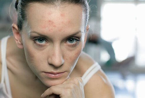 Photo of woman with acne.