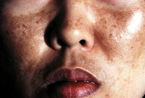 Picture of Melasma