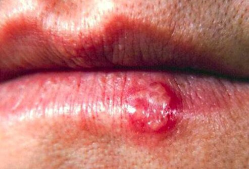Picture of Cold Sores (Fever Blisters)