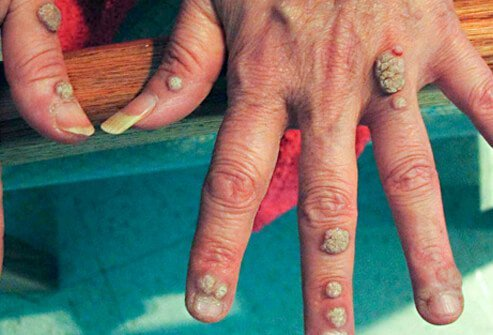 common warts on fingers. In most cases, common warts