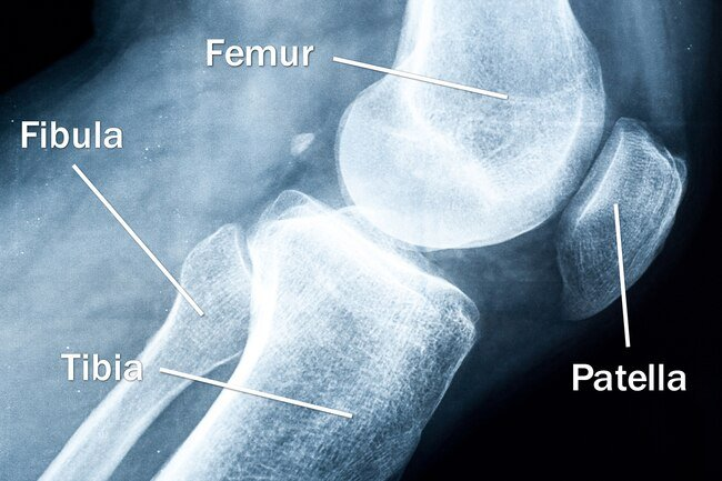 Pain Management All About Your Knees