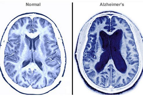 A scan showing a normal brain vs. a brain with Alzheimer's.