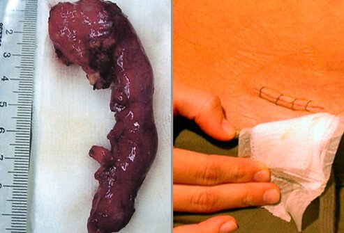 Potential Complications of Appendectomy