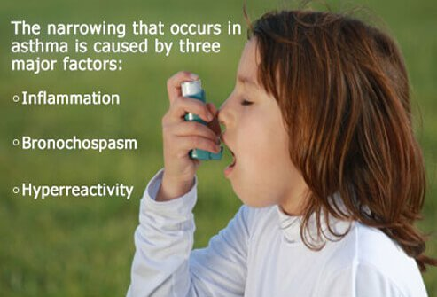 During an asthma attack, airways become inflamed and sensitive.