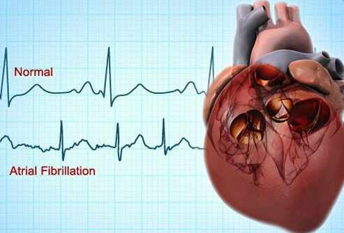 The AFib definition is an irregular heartbeat that may lead to blood clots, heart failure, stroke, or other complications.