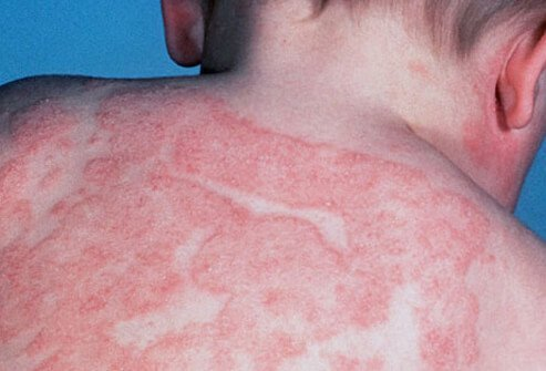pictures of heat rash on babies. heat rashes on abies. heat