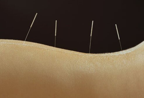 A woman gets acupuncture.