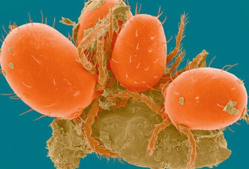 Scanning electron micrograph of chiggers which are less than 1/150th of an inch in diameter.