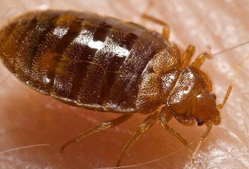 A photo of a bedbug feeding on human skin.