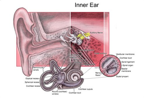 Perilymph fistula is a leakage of inner ear fluid into the middle ear.
